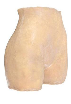 Amniocentesis Image