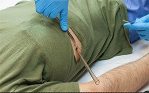 Wearable Chest Tube Trainer Image