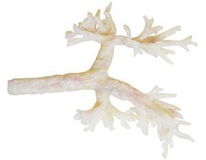 Trachea Image